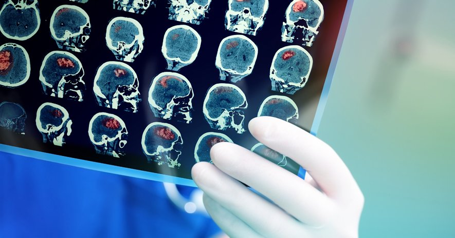 Brain Stroke Diagnostics – Scaling Specialist Knowledge And Saving Lives